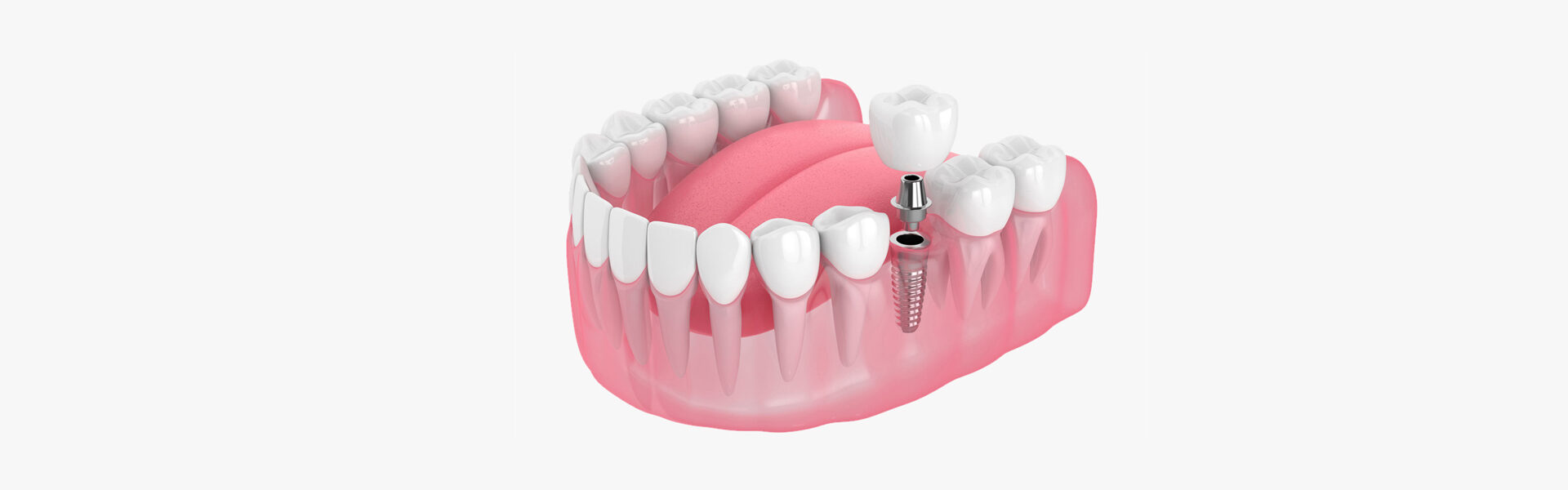 Dental Implants in East York, Toronto, ON