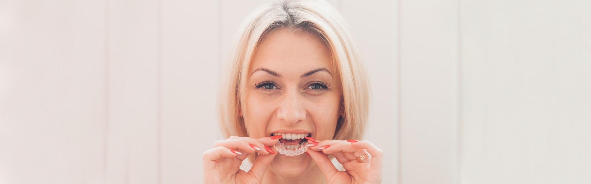 Teeth Straightening Convenient with Discreet Invisalign Braces